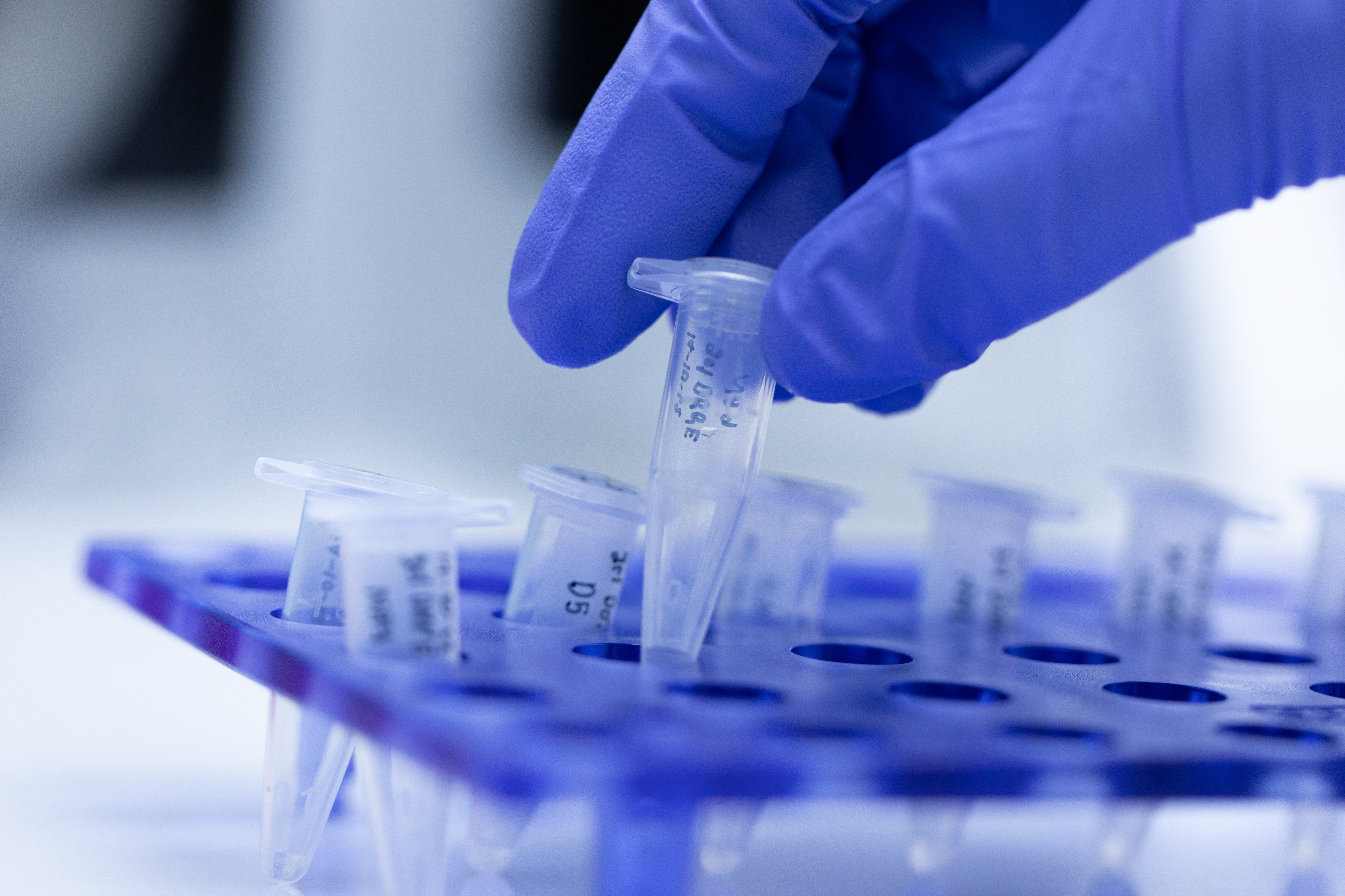 Next Day Legionella PCR Phigenics